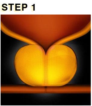 UROLIFT STEP 1