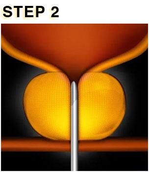UROLIFT STEP 2
