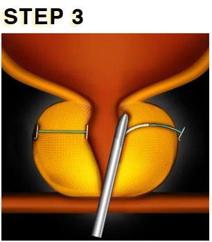 UROLIFT STEP 3